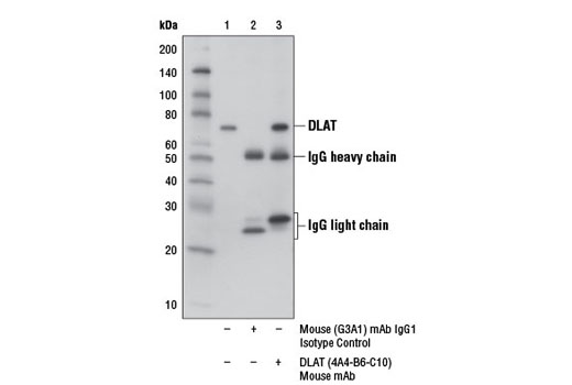 Immunoprecipitation Image 1: DLAT (4A4-B6-C10) Mouse mAb