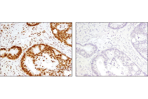IHC-P (paraffin) Image 28 - Acetyl-Histone Antibody Sampler Kit