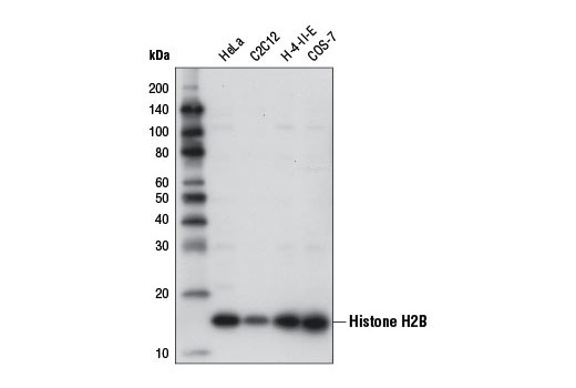 Western Blotting Image 6 - Acetyl-Histone Antibody Sampler Kit