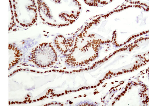 IHC-P (paraffin) Image 16 - Acetyl-Histone Antibody Sampler Kit