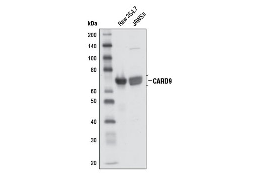 Western Blotting Image 1: CARD9 Antibody (Mouse Preferred)