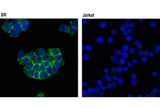 Confocal immunofluorescent analysis of SR (positive; left) and Jurkat (negative; right) cells using NTAL/LAB (D7I2B) Rabbit mAb (green). Blue pseudocolor = DRAQ5<sup>®</sup> #4084 (fluorescent DNA dye).