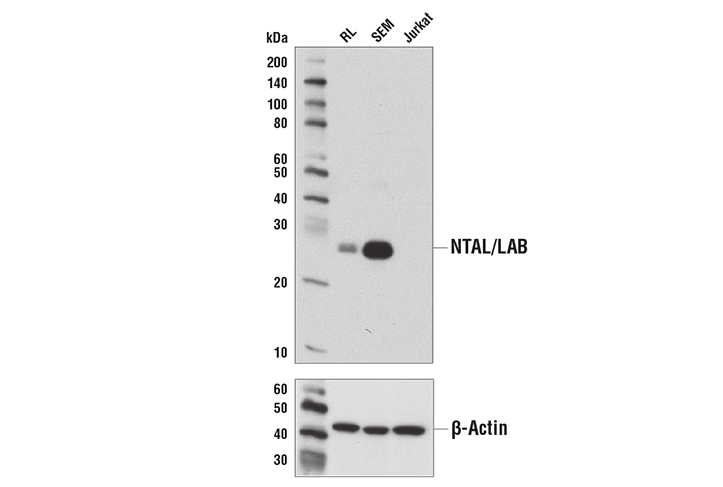 Western blot analysis of extracts from RL-7, SEM, and Jurkat cells using NTAL/LAB (D7I2B) Rabbit mAb (upper) or β-Actin (D6A8) Rabbit mAb #8457 (lower).
