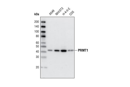 Polyclonal Antibody - PRMT1 (A33) Antibody, UniProt ID Q99873, Entrez ID 3276 #2449, Chromatin Regulation / Acetylation