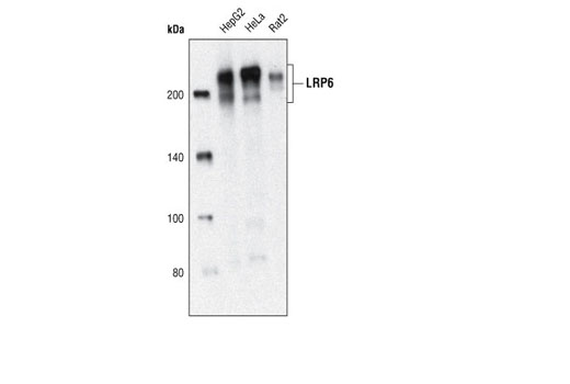 Western blot analysis of total cell lysates from HepG2, HeLa and Rat2 cells using LRP6 (C5C7) Rabbit mAb.