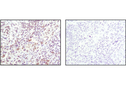 Immunohistochemical analysis of paraffin-embedded human lung carcinoma using Phospho-SAPK/JNK (Thr183/Tyr185) (81E11) Rabbit mAb in the presence of control peptide (left) or Phospho-SAPK/JNK (Thr183/Tyr185) Blocking Peptide #1215 (right).