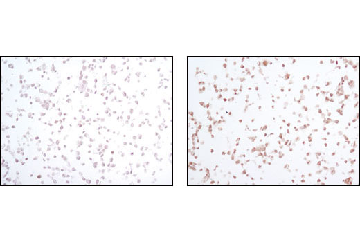 Immunohistochemical analysis of paraffin-embedded 293T cells untreated (left) or UV-treated (right) using Phospho-SAPK/JNK (Thr183/Tyr185) (81E11) Rabbit mAb.