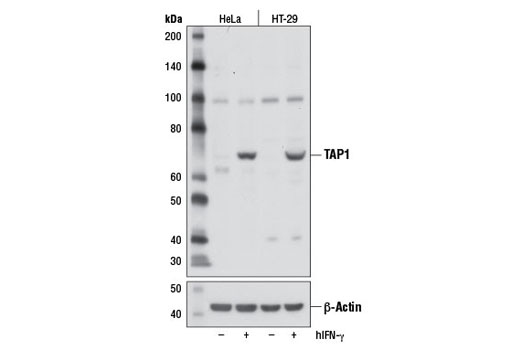 Polyclonal Antibody - TAP1 Antibody - Western Blotting, UniProt ID Q03518, Entrez ID 6890 #12341, Lymphocyte Signaling