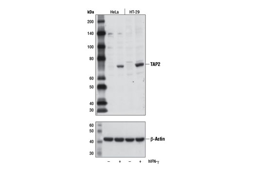 Western blot analysis of extracts from HeLa and HT-29 cells, untreated (-) or treated with Human Interferon-γ (hIFN-γ) #8901 (10 ng/ml, 16 hr; +), using TAP2 Antibody (upper) or β-Actin (D6A8) Rabbit mAb #8457 (lower).