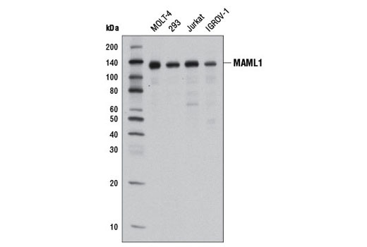 Western blot analysis of extracts from various cell lines using MAML1 (D3K7B) Rabbit mAb.