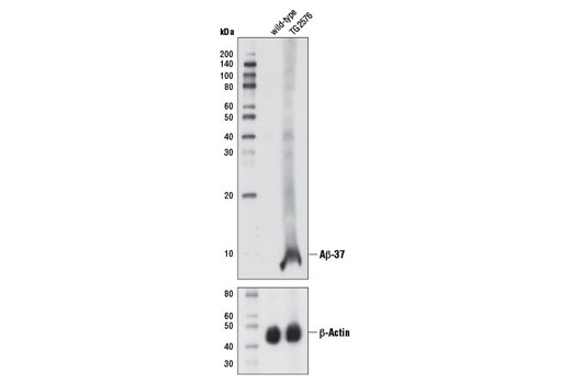 Western blot analysis of brain extracts from 13-month old wild-type and TG2576 mice using β-Amyloid (1-37 Specific) (D2A6H) Rabbit mAb (upper) or β-Actin (D6A8) Rabbit mAb #8457 (lower).