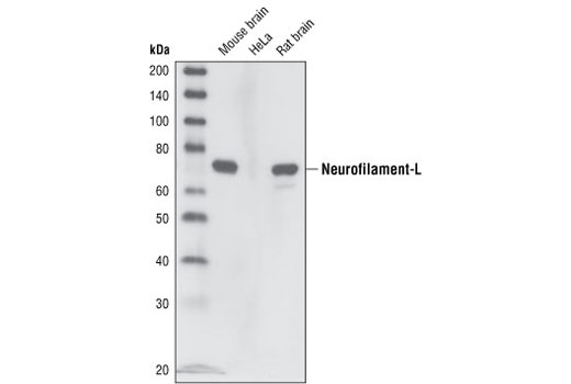 Western blot analysis of extracts from mouse brain, HeLa cells and rat brain, using Neurofilament-L (C28E10) Rabbit mAb.