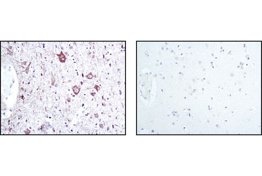 Immunohistochemical analysis of paraffin-embedded human brain using Neurofilament-L (C28E10) Rabbit mAb in the presence of control peptide (left) or Neurofilament-L blocking peptide #1005 (right).