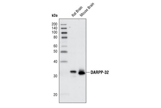 Western blot analysis of extracts from rat and mouse brain using DARPP-32 (19A3) Rabbit mAb.