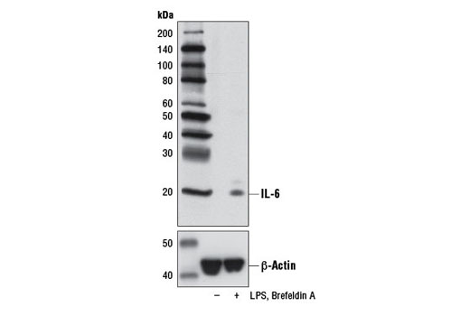 Western blot analysis of extracts from THP-1 cells differentiated with TPA #4174 (80 nM, overnight), untreated (-) or LPS-treated (100 ng/ml, 6 hr; +) and treated with Brefeldin A #9972 (300 ng/mL, last 3 hr of stimulation; +), using IL-6 (D3K2N) Rabbit mAb or β-Actin (D6A8) Rabbit mAb #8457 (lower).