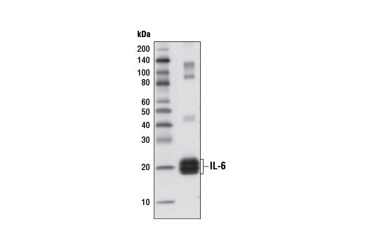 Western blot analysis of 1 ng recombinant Human Interleukin-6 (hIL-6) #8904 using IL-6 (D3K2N) Rabbit mAb.