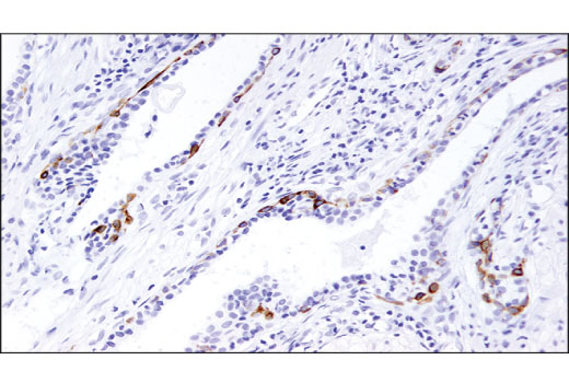 Immunohistochemical analysis of paraffin-embedded human prostate carcinoma using TrkA (12G8) Rabbit mAb.