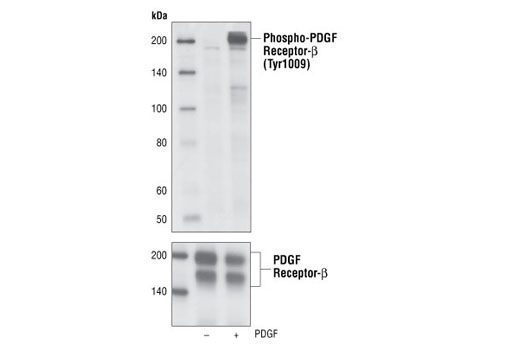 Western blot analysis of cell extracts from NIH/3T3 cells unstimulated or stimulated with PDGF-BB (100 ng/ml for 5 min), using Phospho-PDGF Receptor-β (Tyr1009) (42F9) Rabbit mAb (upper) or PDGF receptor-β (2B3) Mouse mAb #3175 (lower).