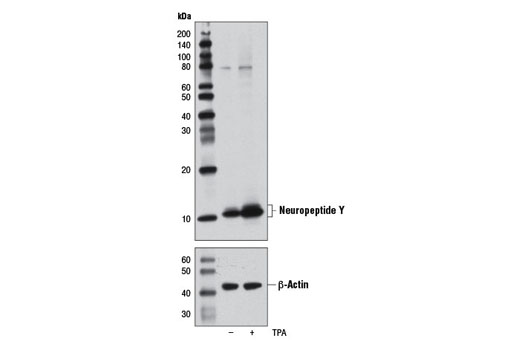 Western blot analysis of extracts from SH-SY5Y cells, untreated (-) or treated with TPA #4174 (200 nM, 24 hr; +), using Neuropeptide Y (D7Y5A) XP<sup>®</sup> Rabbit mAb (upper) or β-Actin (D6A8) Rabbit mAb #8457 (lower).