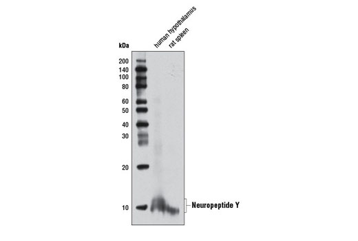 Western blot analysis of extracts from human hypothalamus and rat spleen using Neuropeptide Y (D7Y5A) XP<sup>®</sup> Rabbit mAb.