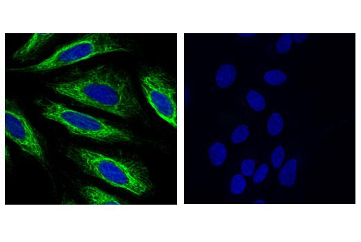 Monoclonal Antibody - Keratin 17 (D12E5) XP® Rabbit mAb, UniProt ID Q04695, Entrez ID 3872 #12509 - Primary Antibodies