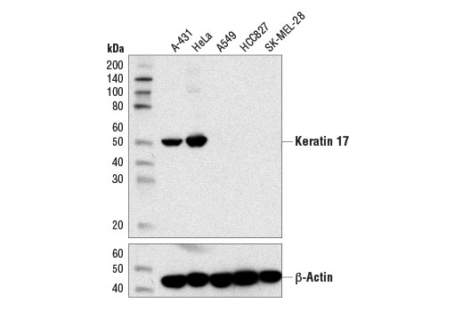 Western blot analysis of extracts from various cell lines using Keratin 17 (D12E5) XP<sup>®</sup> Rabbit mAb (upper) and β-Actin (D6A8) Rabbit mAb #8457 (lower).
