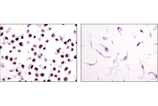 Immunohistochemical analysis of paraffin-embedded cell pellets, HeLa (left) or XP2Y0 (right), using ERCC1 (D6G6) XP<sup>®</sup> Rabbit mAb.
