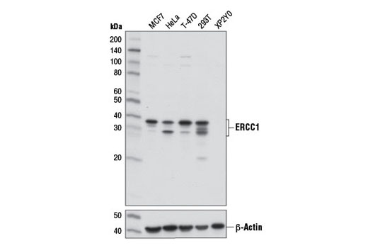 Western blot analysis of extracts from various cell lines using ERCC1 (D6G6) XP<sup>®</sup> Rabbit mAb (upper) or β-Actin (D6A8) Rabbit mAb #8457 (lower).