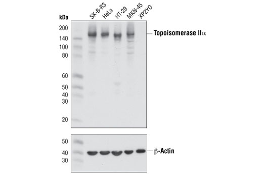Western blot analysis of extracts from various cell lines using Topoisomerase IIα (D10G9) XP<sup>®</sup> Rabbit mAb (upper) or β-Actin (D6A8) Rabbit mAb #8457 (lower).