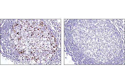 Immunohistochemical analysis of paraffin-embedded human lymph node using Topoisomerase IIα (D10G9) XP<sup>®</sup> Rabbit mAb in the presence of control peptide (left) or antigen-specific peptide (right).