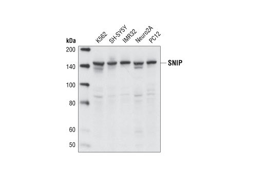 Polyclonal Antibody Regulation of Cell Migration