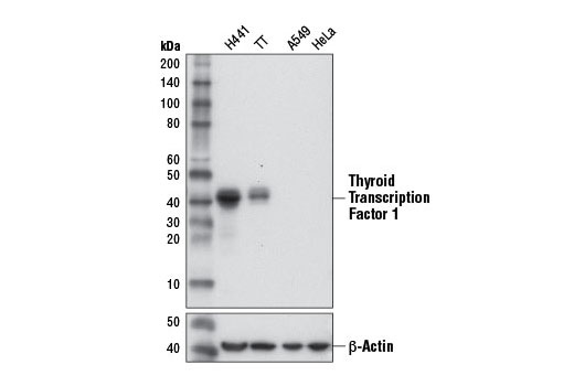 Western blot analysis of extracts from TTF-1 positive H441 and TT cells, and TTF-1 negative A549 and HeLa cells, using Thyroid Transcription Factor 1 (TTF-1) (D2E8) Rabbit mAb (upper) and β-Actin (D6A8) Rabbit mAb #8457 (lower).