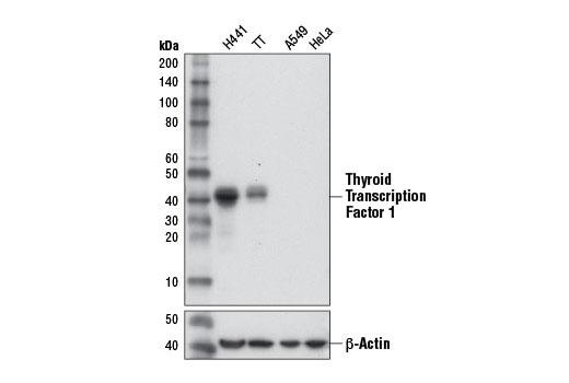 CST - Thyroid Transcription Factor 1 (TTF-1) (D2E8) Rabbit mAb
