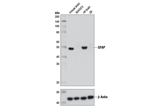Western blot analysis of extracts from mouse brain, NIH/3T3 cells, rat brain, and C6 cells using GFAP (D1F4Q) XP<sup>®</sup> Rabbit mAb (upper) or β-Actin (D6A8) Rabbit mAb #8457 (lower).