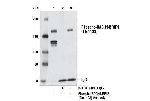 Immunoprecipitation of phospho-BACH1/BRIP1 (Thr1133) from 293T cell extracts using Normal Rabbit IgG #2729 (lane 2) or Phospho-BACH1/BRIP1 (Thr1133) Antibody (lane 3). Lane 1 is 10% input. Western blot analysis was performed using Phospho-BACH1/BRIP1 (Thr1133) Antibody.