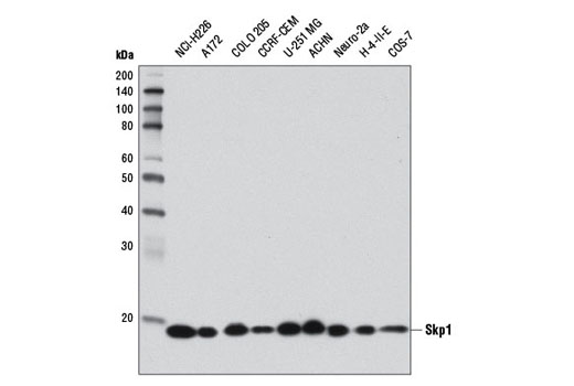 Western blot analysis of extracts from various cell lines using Skp1 (D3J4N) Rabbit mAb.