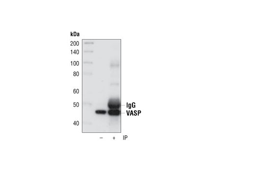 Immunoprecipitation of VASP from HeLa cell extracts using VASP Rabbit mAb. The same antibody was used for Western detection.