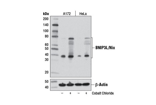 Western blot analysis of A172 and HeLa cells, untreated (-) or cobalt chloride-treated (100 μM, overnight; +), using BNIP3L/Nix (D4R4B) Rabbit mAb (upper) or β-Actin (D6A8) Rabbit mAb #8457 (lower).