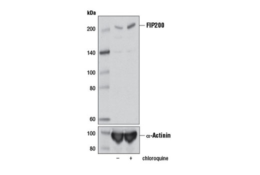 Western blot analysis of extracts from A172 cells, untreated (-) or chloroquine-treated (50 μM, overnight; +) using FIP200 (D10D11) Rabbit mAb (upper) or α-Actinin (D6F6) XP<sup>®</sup> Rabbit mAb #6487 (lower).