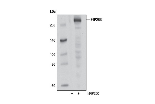 Western blot analysis of extracts from 293T cells, mock transfected (-) or transfected with a construct expresssing full-length human FIP200 (hFIP200; +), using FIP200 (D10D11) Rabbit mAb.