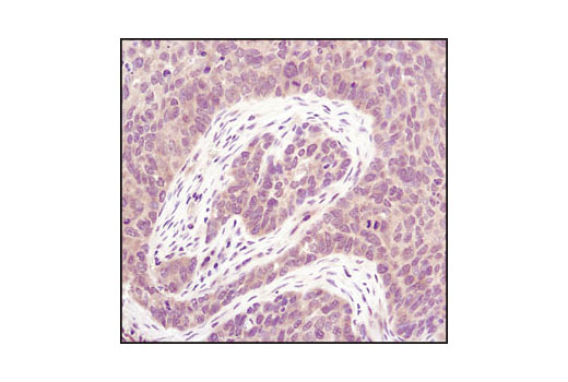 Immunohistochemical analysis of paraffin-embedded human lung carcinoma using PP2A A Subunit (81G5) Rabbit mAb.