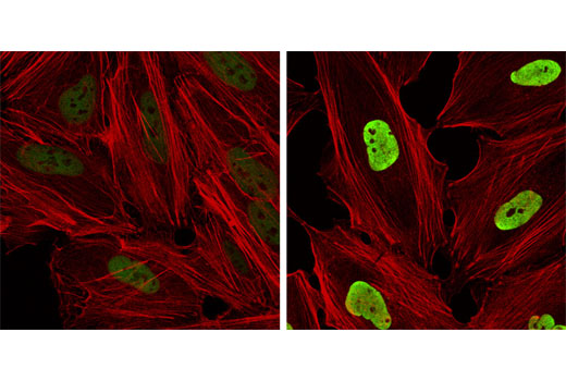 Confocal immunofluorescent analysis of HeLa cells, untreated (left) or treated with TSA #9950 (right), using Acetyl-Histone H3 (Lys9) (C5B11) Rabbit mAb (green). Actin filaments have been labeled with Alexa Fluor<sup>®</sup> 555 phalloidin (red).