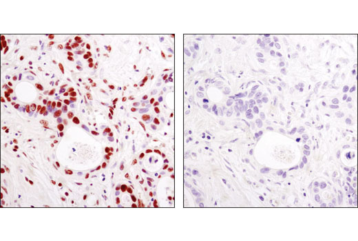 IHC-P (paraffin) Image 18 - Acetyl-Histone Antibody Sampler Kit