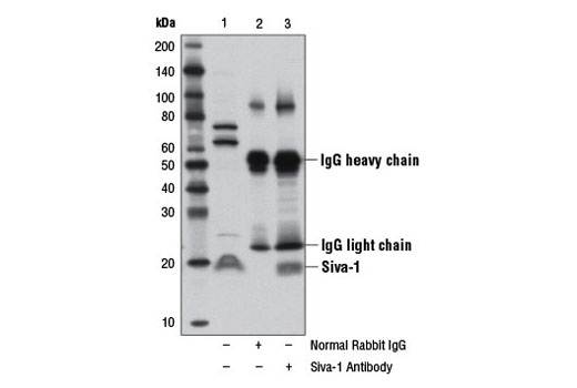 Polyclonal Antibody Immunoprecipitation Activated t Cell Apoptosis