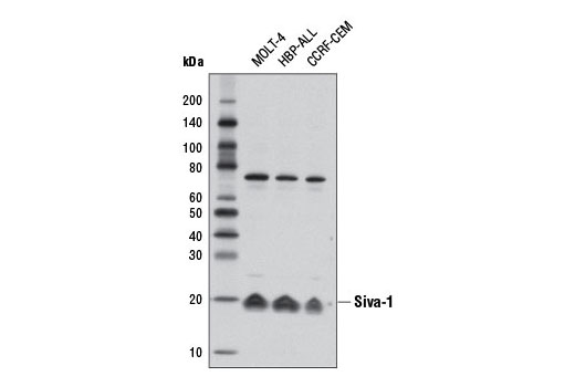 Western blot analysis of extracts from MOLT-4, HBP-ALL, and CCRF-CEM cells using Siva-1 Antibody.