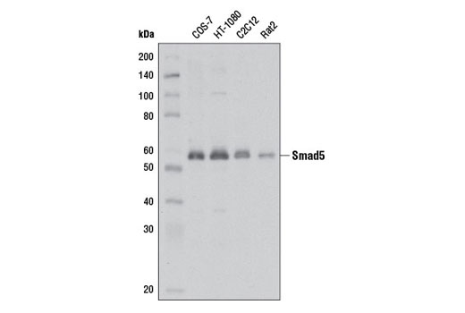 Western blot analysis of extracts from various cell lines using Smad5 (D4G2) Rabbit mAb.