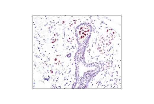 Immunohistochemical analysis of paraffin-embedded human breast carcinoma using Phospho-Stat5 (Tyr694) (C11C5) Rabbit mAb.