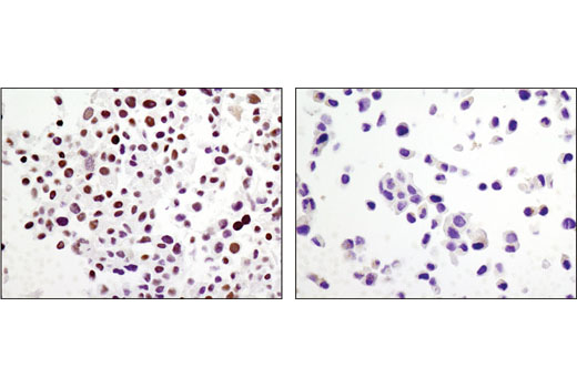Immunohistochemical analysis of paraffin-embedded cell pellets, COS-7 (left) or T-47D (right), using ARID1A/BAF250A (D2A8U) Rabbit mAb.