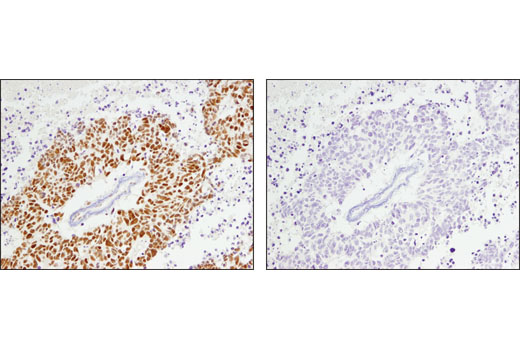 Immunohistochemical analysis of paraffin-embedded human lung adenosquamous carcinoma using ARID1A/BAF250A (D2A8U) Rabbit mAb in the presence of control peptide (left) or antigen-specific peptide (right).