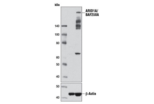Western blot analysis of T-47D and Jurkat cell extracts using ARID1A/BAF250A (D2A8U) Rabbit mAb (upper) or ß-Actin (D6A8) Rabbit mAb #8457 (lower). Additional ARID1A/BAF250A degradation products may be detected in some cell extracts between 135kDa-250kDa, which are absent in the ARID1A/BAF250A negative T-47D cell line.